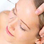 acupunturaFacial